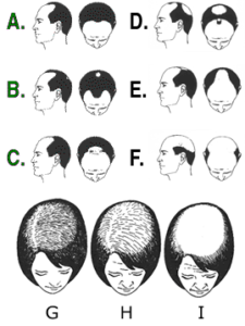 Stages of Hair Loss in Men & Women explained by Virginia Surgical Center