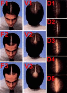 Types of Hair Loss in Men & Women explained by Virginia Surgical Center